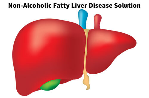 Non-Alcoholic Fatty Liver Disease Solution Review